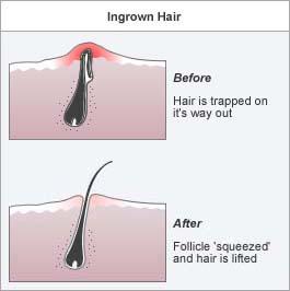 подкожни косми проблеми